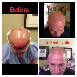 hair-replacement-neograft_250x250