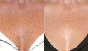 Fraxel-laser-treatment-before-and-after