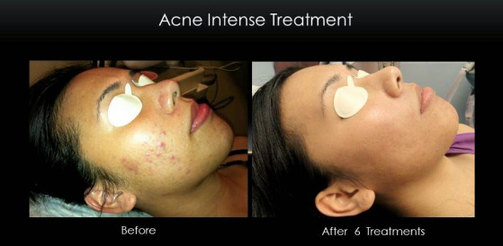 acne_treatment_isolaz_female_6_sessions