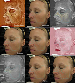 visia-skin-analysis-images