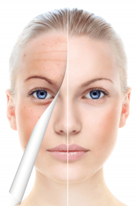 """Image result for pigment balancing peel"""""""