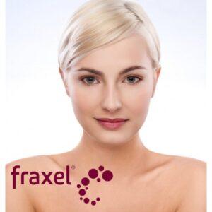 fraxel-2