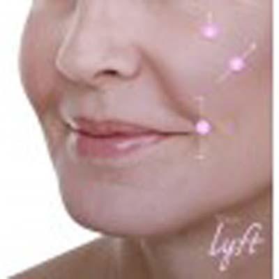 restylane-lyft-3_21
