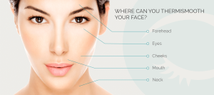 Treatment-Where-to-Thermi_0001_ThermiSmooth-Face_1_0