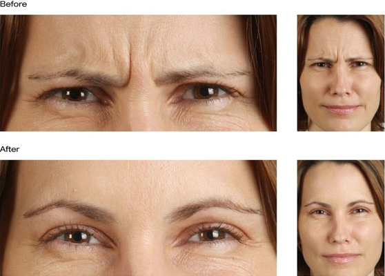 Botox – Prescription Aesthetic And Wellness Spa, Cool Sculpting