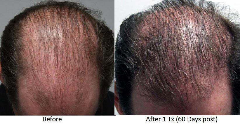 esclipse-micro-needling-with-prp-before-after-image